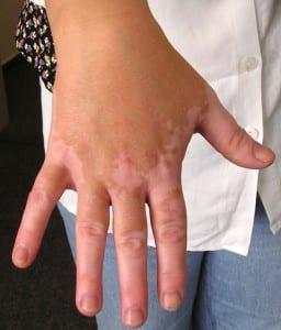 vitiligo , una enfermedad