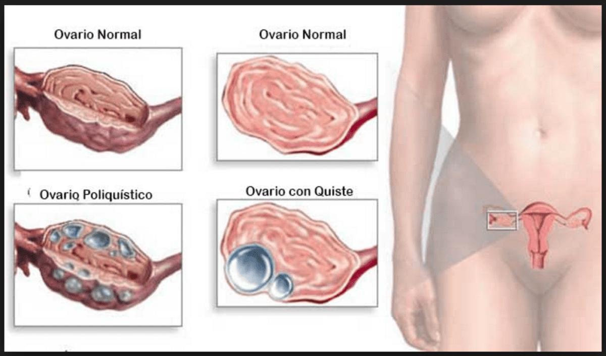 Quistes en ovarios no significa un diagnóstico de cáncer.