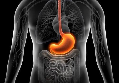 Personas con gastritis.