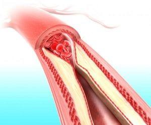 ¿Que es el colesterol?