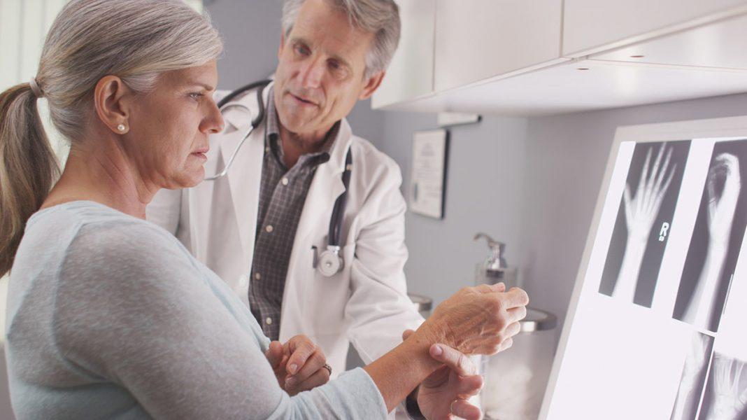 Consejos para personas con osteoporosis