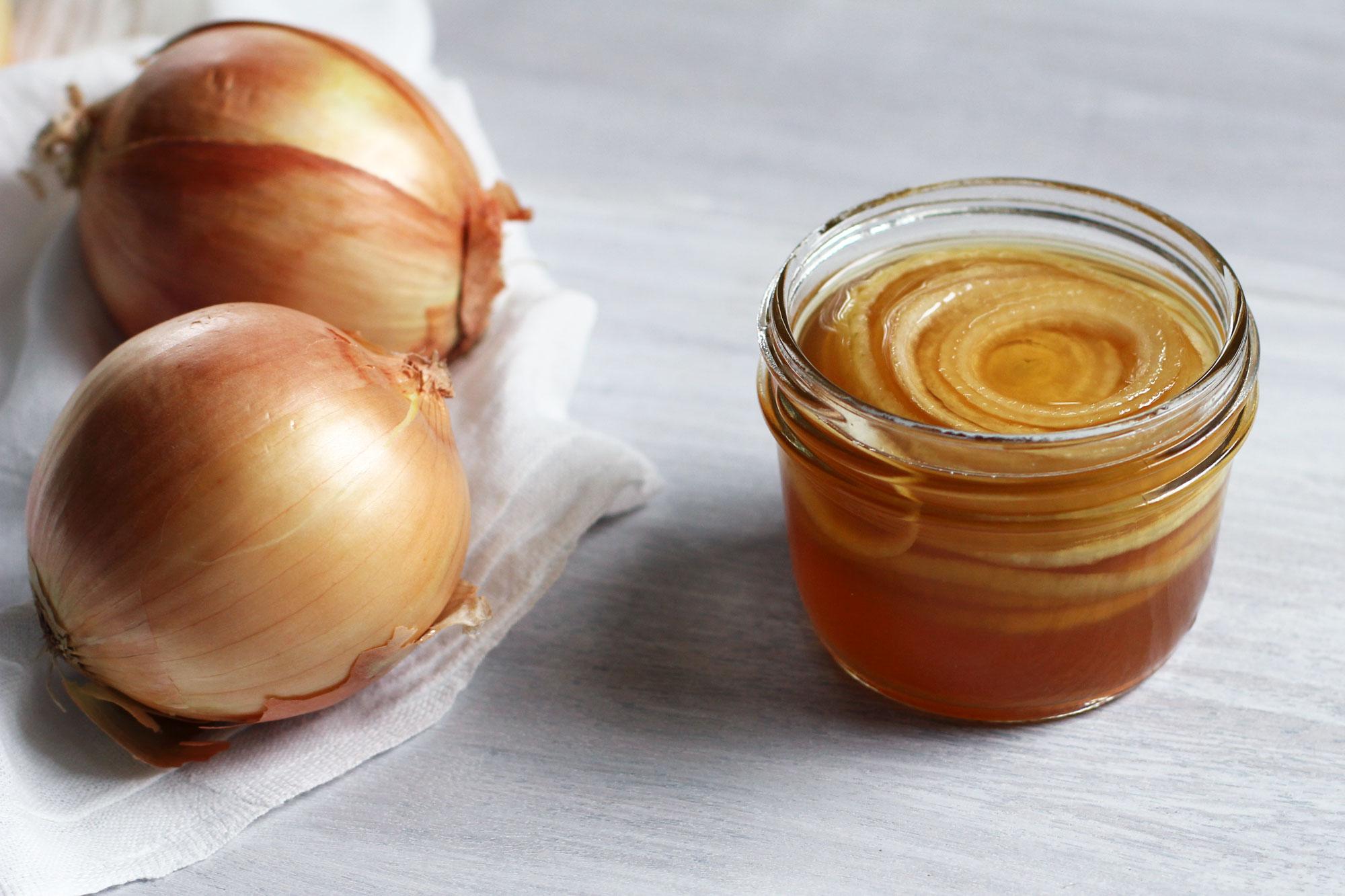 La cebolla como remedios antural para tos